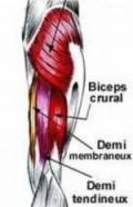 Déchirure musculaire des ischio-jambiers, douleurs à l'arrière de la cuisse, douleurs musculaires, douleurs à la cuisse, élongation musculaire, claquage,