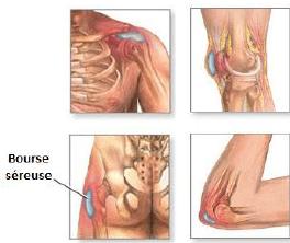 qu'est-ce qu'une bursite, bursite, physiothérapie, traitement, clinique, montréal, INFLAMMATION DES BOURSES SÉREUSES, douleurs, traitement,
