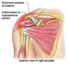 Shoulder tendinitis, acromium process of scapula, muscle strain, tendinitis, physiotherapy, rehabilitation, shoulder pain, physiotherapy, osteopathy, occupational therapy,