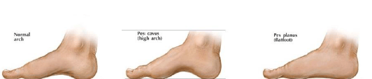 s, plantar faciitis, physiotherapy, physical rehabilitation, pain in the foot plant,
