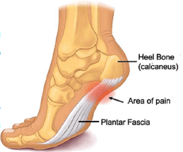 Plantar Fasciitis, heel-bone, plantar faciitis, physiotherapy, physical rehabilitation, pain in the foot plant,
