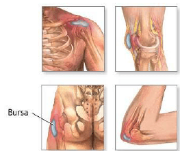 What is a bursitis, treatment, montreal, physical rehabilitation clinic in Montreal, bursa, physiotherapy clinic, physical rehabilitation center