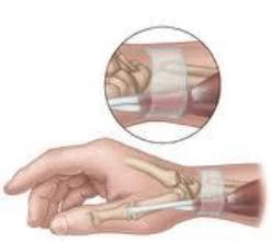 tendinite de quervain, blessure à la main, entorse du poignet, douleurs au poignet, physiothérapie, soulagement de la douleur, physiothérapie à Montréal