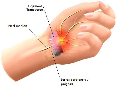 Le syndrome du canal carpien, tunnel carpien , thérapie de la main, physiothérapie, réadaptation, ergothérapie, rééducation post chirurgie