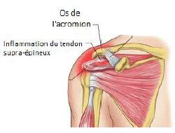 Tendinite de l'épaule, tendinite à l'épaule, douleur à le, déboîtement de l'épaule, physiothérapie, rééducation, orthopédie, clinique de physiothérapie, Montréal