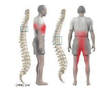 Disc herniation treatment, physiotherapy, physical rehabilitation, montreal, physiotherapist,