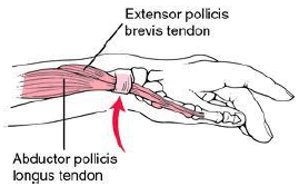 wrist tendinitis, carpal tunnel syndrom, Quervain's tendinitis, physiotherapy, tendinitis, pain, exercise, sport injury, physical rehabilitation center, osteopathy, occupational therapy