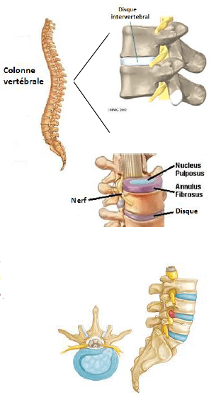 physiotherapy treatments, DISC HERNIATION - LUMBAR HERNIATION, LOWER BACK PAIN, HOW TO TREAT LUMBAR PAIN