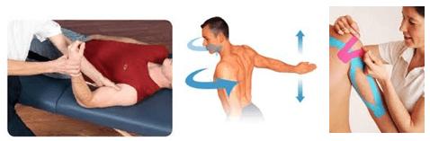 biceps, Physiothérapie, clinique de physiothérapie à Montréal, élongation du muscle, claquage, élongation musculaire du quadriceps, guérir blessure musculaire, biceps, brachial, brachii