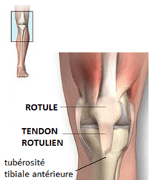 tendinite du tendon rotulien, biceps physiotherapy treatments, tendon treatment, tendon, rotule, tendinite, biceps physiotherapy treatments, Physiothérapie, clinique de physiothérapie à Montréal, élongation du muscle, claquage, élongation musculaire du quadriceps, guérir blessure musculaire,
