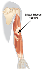 triceps, man gym, Triceps brachii muscle tear, Physiotherapy, physical rehabilitation, physiotherapy clinic in montreal, rehabilitation center, muscle pain, muscle tear,